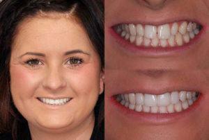 Winner of restorative case: conservative smile makeover