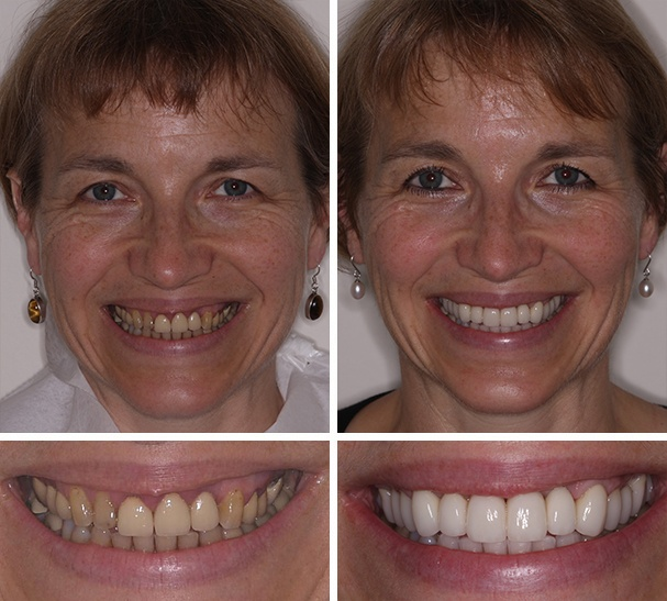 Smile Gallery - before and after photos