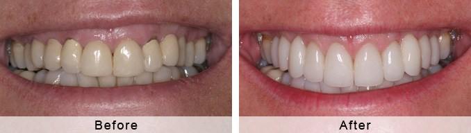 Complete Smile Rejuvenation | Clifton Smiles