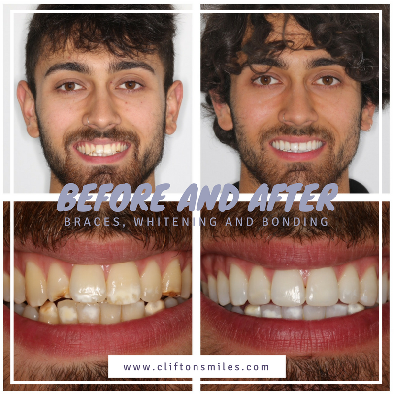 Before and after braces