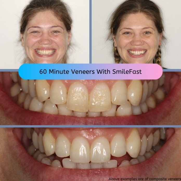 60 Minute Veneers Now Available